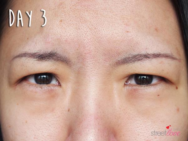 Renee Clinic Botox 11