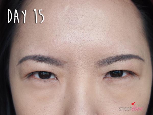 Renee Clinic Botox 14