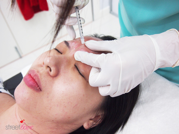 Renee Clinic Botox 5