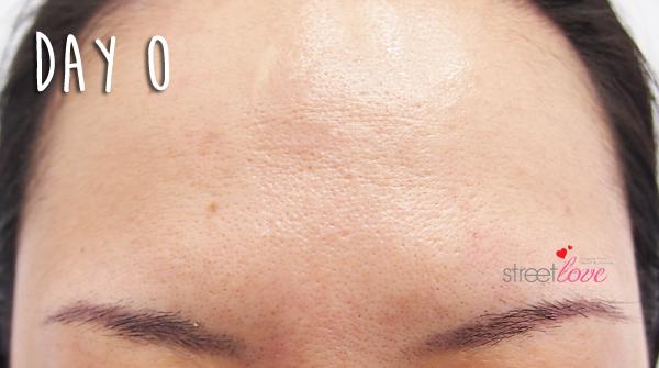 Renee Clinic Botox 8
