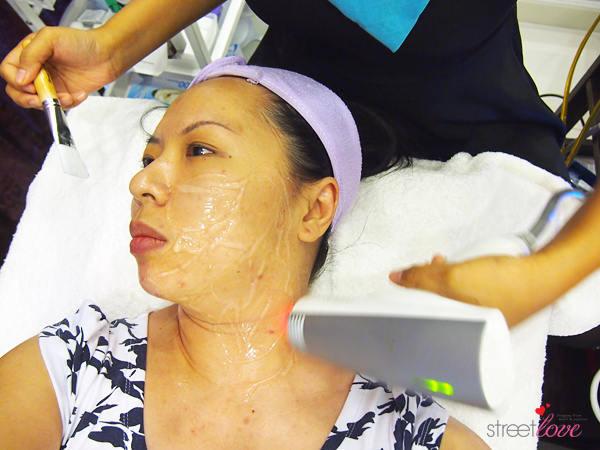 Renee Clinic Sublime Skin Contouring 14