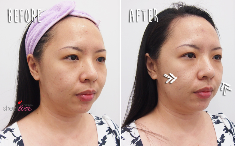 Renee Clinic Sublime Skin Contouring 19