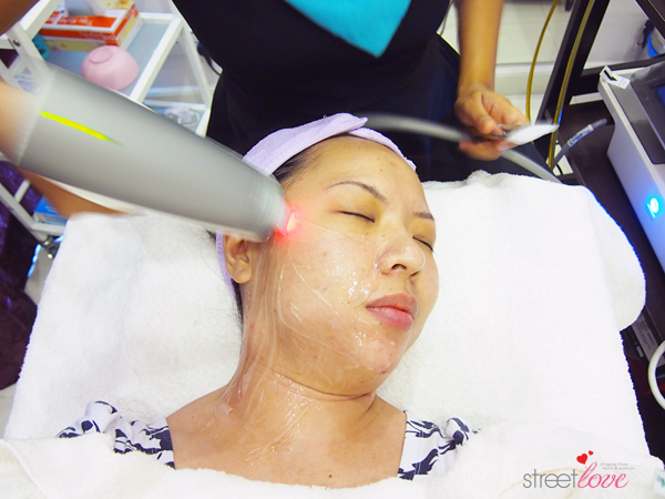 Renee Clinic Sublime Skin Contouring 9