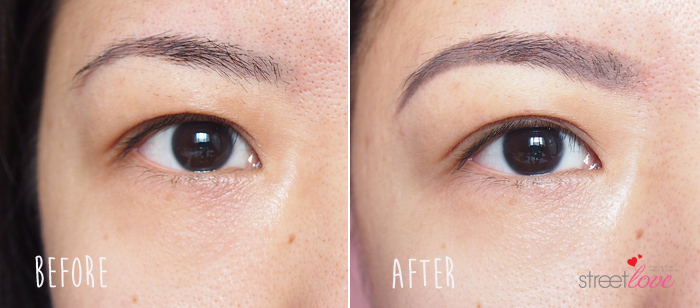 SK-II Facial Treatment Essence-Eye Before and After