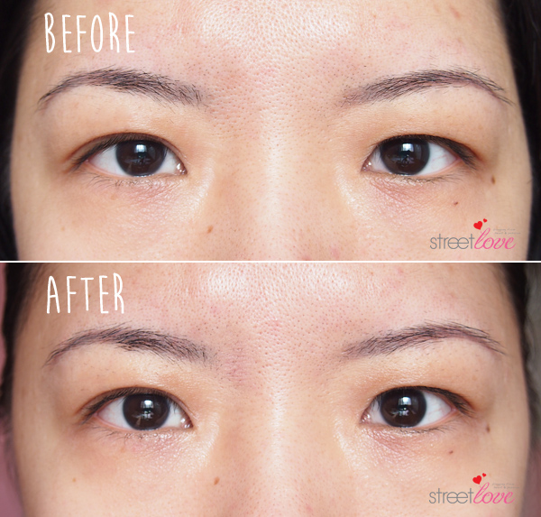 SK-II Magnetic Eye Care Kit Before and After