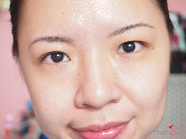 How to lighten acne marks Clear Complexion