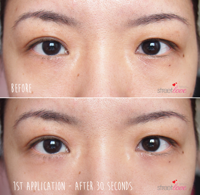 The Face Inc Eye Lift Before and After 1