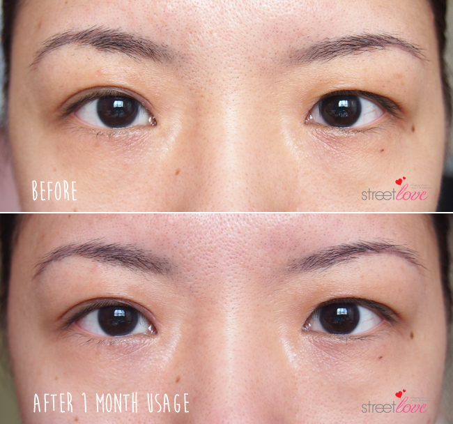 The Face Inc Eye Lift Before and After 2