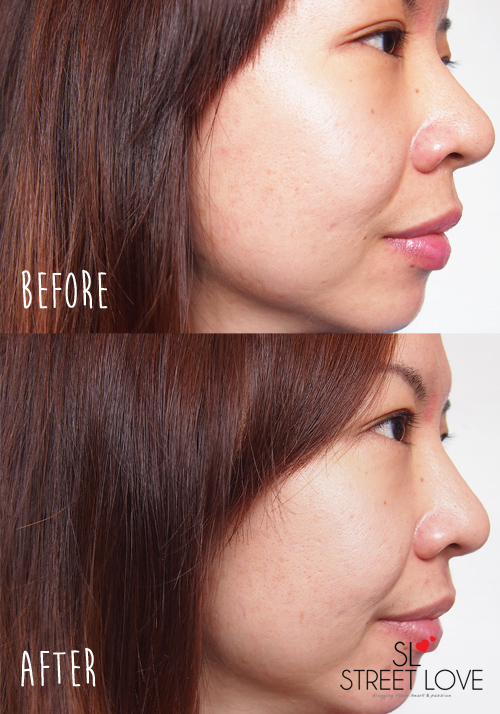 SK-II GenOptics Before and After Side Profile