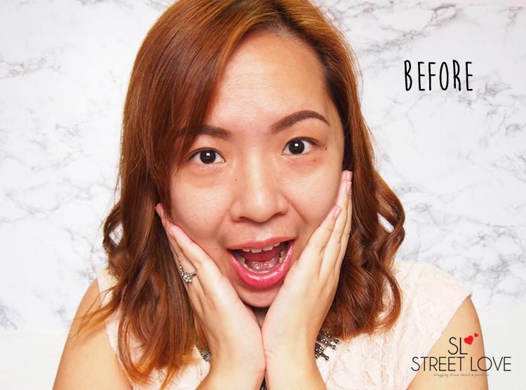 Kaizen Skincare Before