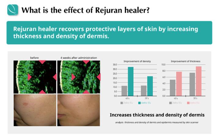 Rejuran Healer Effects
